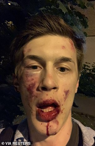 Russian opposition activist Yegor Zhukov was badly beaten outside his home in Moscow