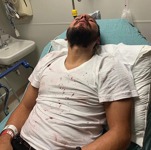 Molina suffered bruises to the face and back but his friend Morales (above) suffered more serious injuries including a concussion, a broken nose, and broken eye socket that will require multiple surgeries