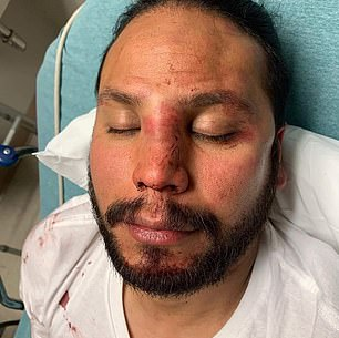 Orlando Morales pictured above in the hospital following the Sunday beat down