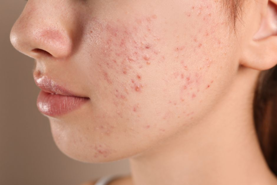 How To Correctly Treat Sebaceous Acne Cysts At Home | The NY Journal