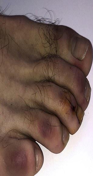Coronavirus: Purple 'covid toes' symptom can last FIVE MONTHS