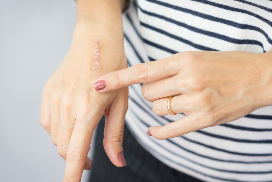 How body scars disappear | The NY Journal
