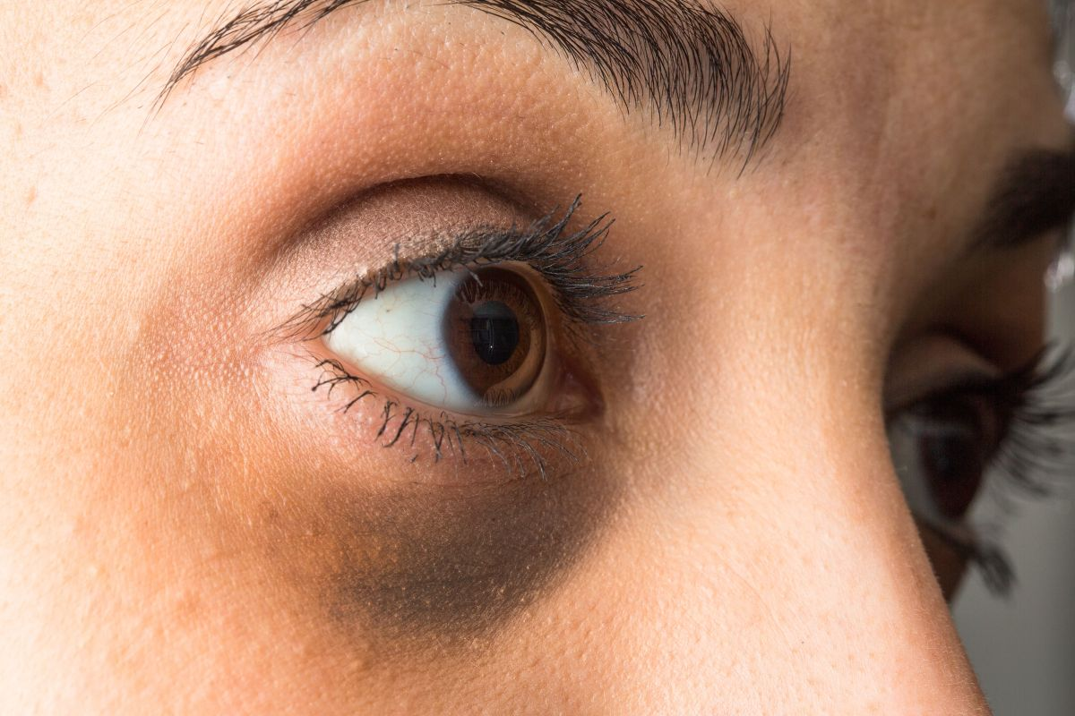 4 effective treatments to eliminate dark circles at home | The State