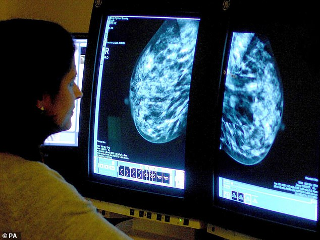 Breast cancer: £60 test could spare thousands of women chemotherapy