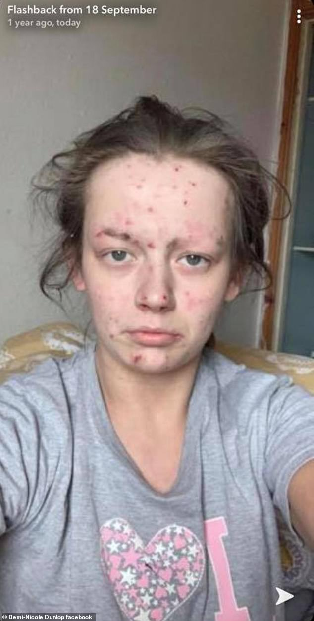 Recovering drug addict, 27, who used heroin and cocaine looks unrecognisable after getting sober