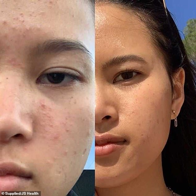 Student reveals the diet and skincare regime that cleared up her 'embarrassing' acne using JS Health