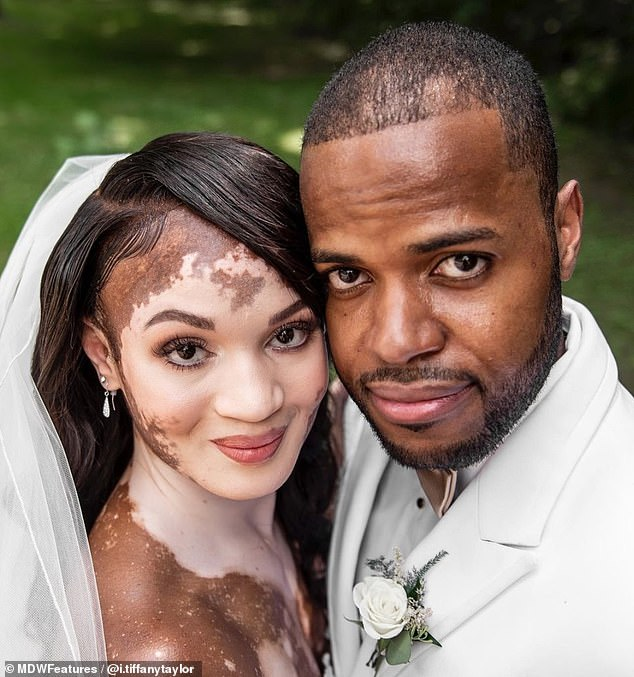 Woman with vitiligo gets married with her white patches proudly on show