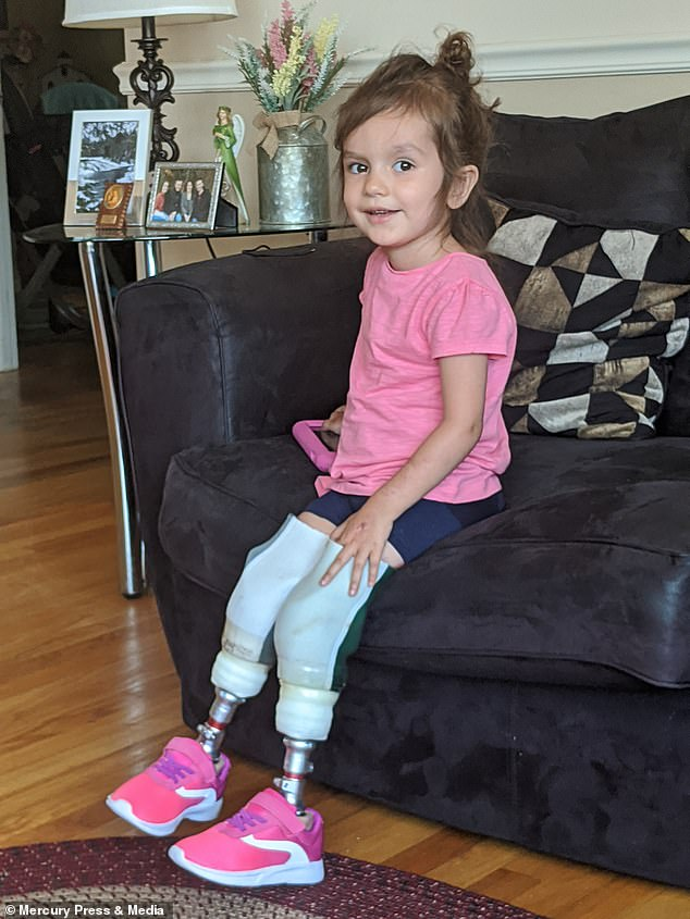 Riley, now three, had both her legs amputated in January this year but in May got her first pair ofprosthetic legs