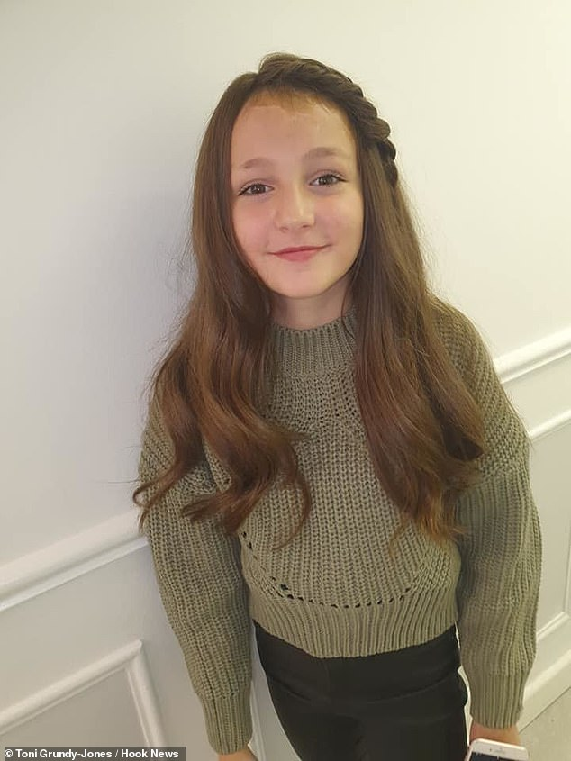 Girl, 10, who burnt scalp in horror accident with deep fat fryer is gifted hairpiece by salon