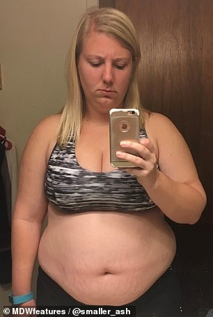 Obese teacher transforms her body with weight loss surgery