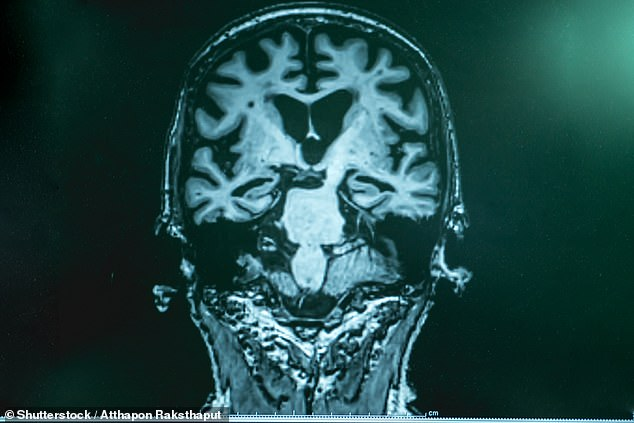The researchers then used brain scans to measure participants' grey and white brain matter and lesions, or areas of injury or disease in the brain, at the end of the study. Stock image