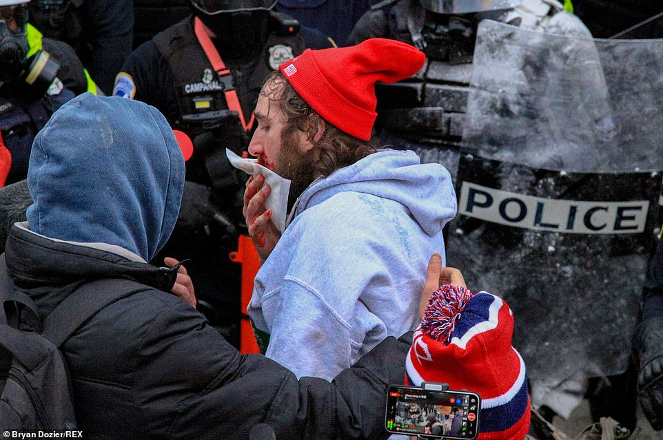 A Trump supporter walks away with a bloodied nose after clashing with police near the Capitol Building in Washington DC