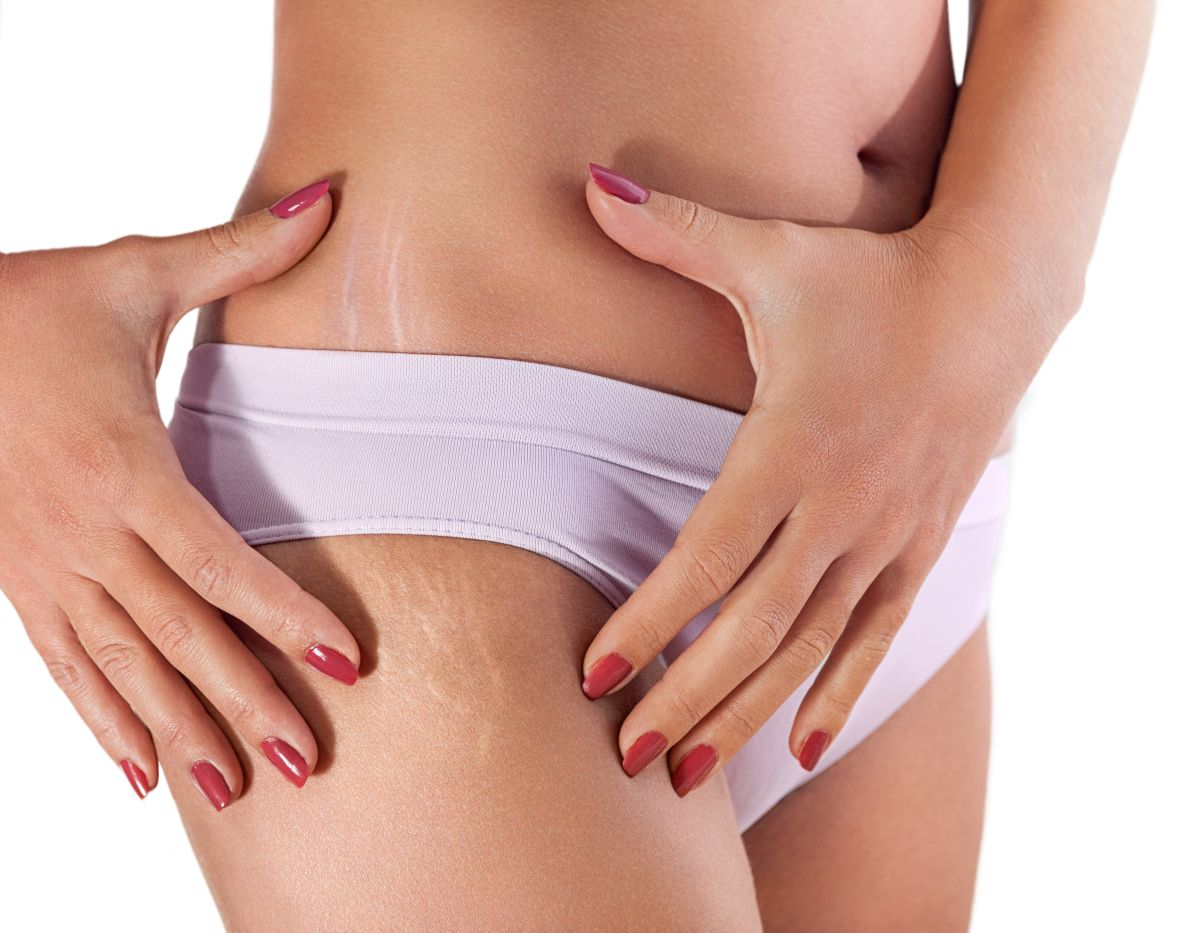 Is there a way to remove stretch marks? | The State